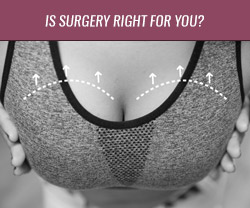 Is Surgery Right for You?